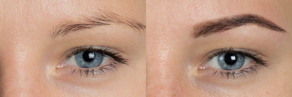 The Before and After of Microblading